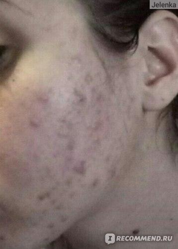 12 кремов от пятен после прыщей на лице: Скинорен от красных